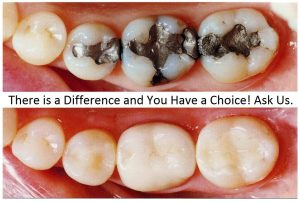 Amalgam removal - Before and After