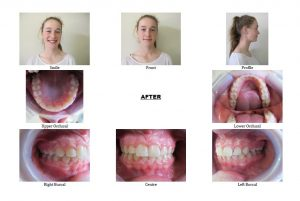 After Non-Extraction Orthodontics
