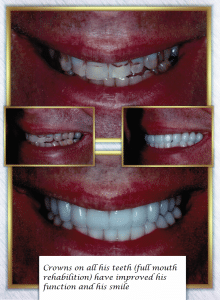 Before After Crowns Full Mouth Rehabilitation