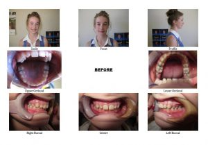 Before Non-Extraction Orthodontics