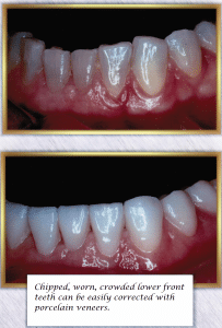 Chipped Teeth Repair Porcelain Veneers