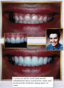 Dental Crowns Full Mouth Rehabilitation Case Study