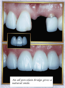 Missing Teeth Porcelain Bridge Before After