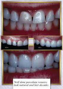 Porcelain Veneers Natural