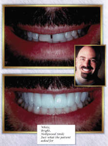 Teeth Whitening Case Study