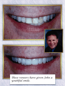 Tooth Veneers Smile Before After
