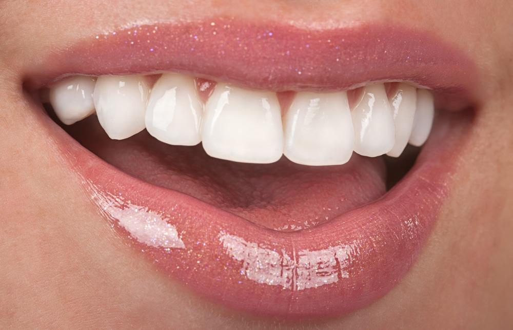 teeth dental veeners