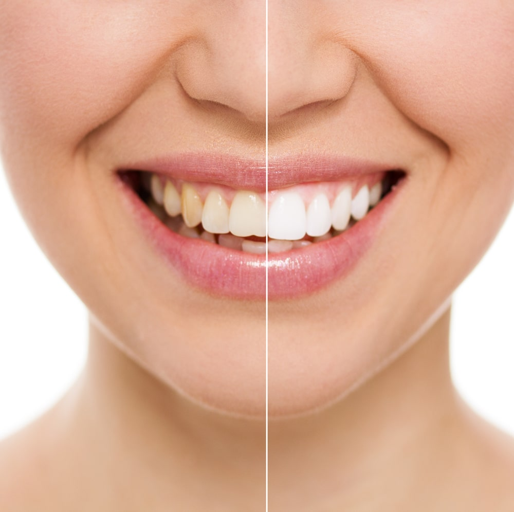 zoom teeth whitening prahran melbourne