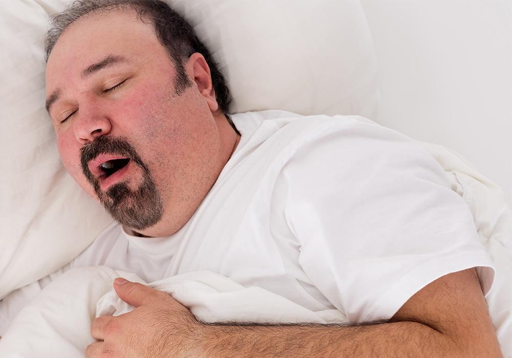 snoring man overweight sleep apnoea
