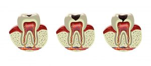 Root Canal Root Cause Dental Xray
