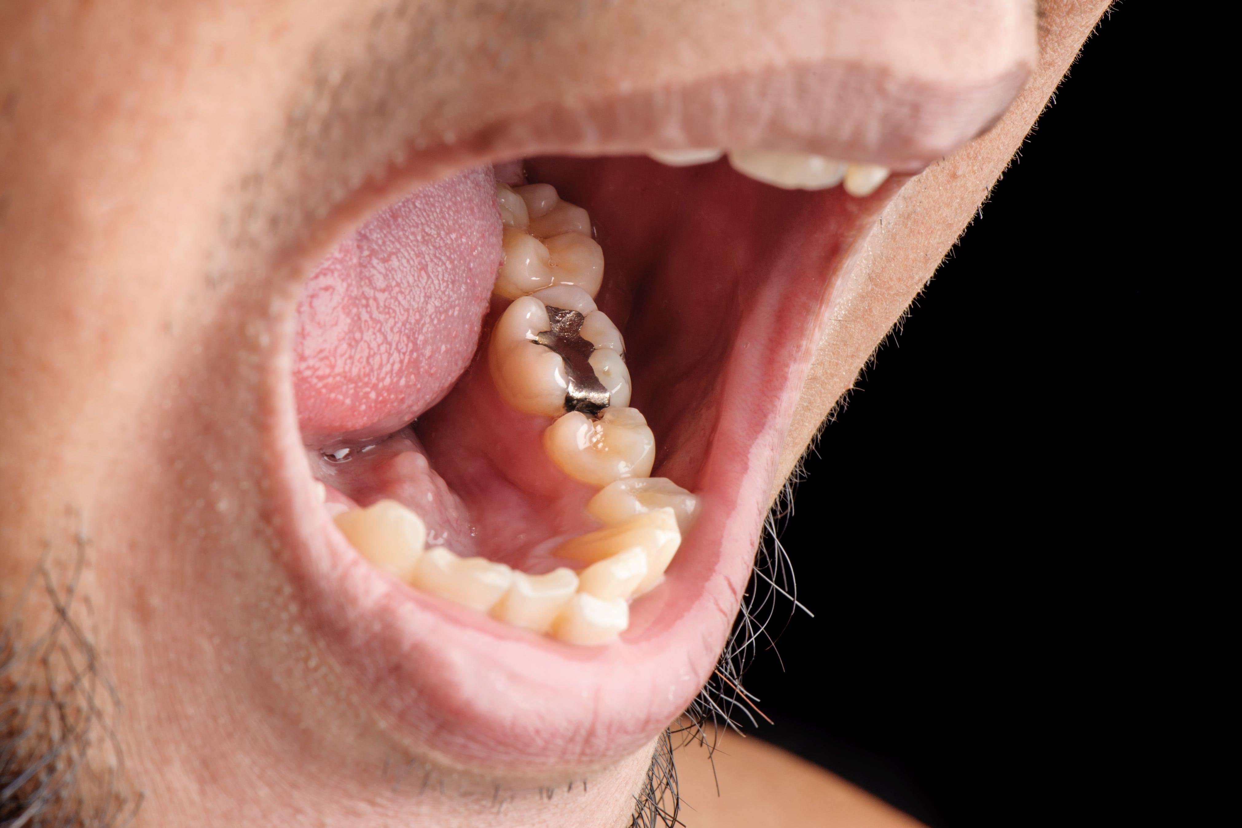 Mouth showing a Mercury Amalgam Dental Filling