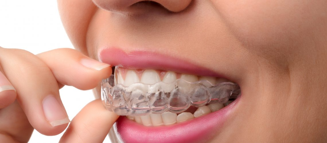 Mouth guard in females mouth